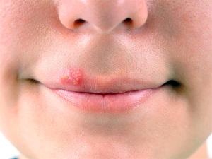 Лечение герпеса на лице в домашних условиях.