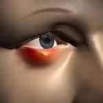 Как лечить ячмень на глазу: как избавиться от недуга быстро