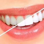 Как отбелить зубы в домашних условиях: 5 очень простых советов