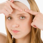 Как быстро убрать прыщи на лбу: несколько советов от дерматолога для вас