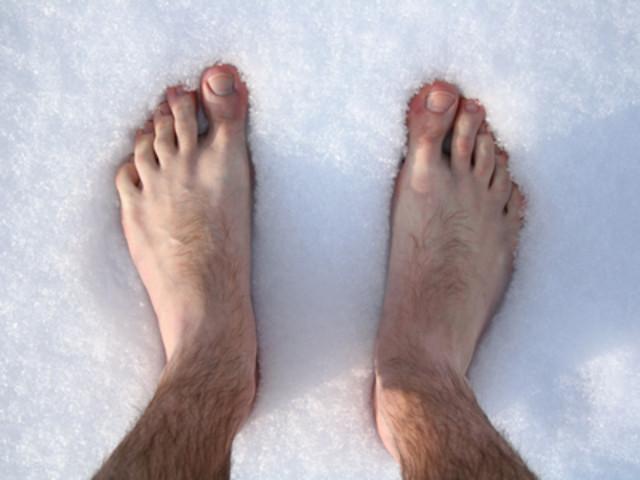 Обморожение ног