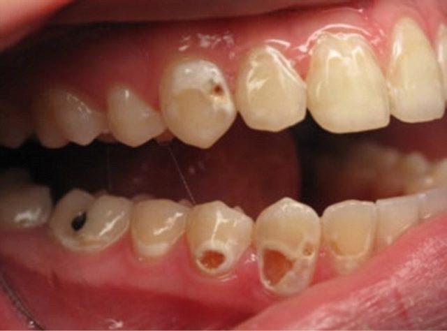 кола может разъесть зубы